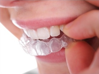 Picture of person putting in invisible braces.