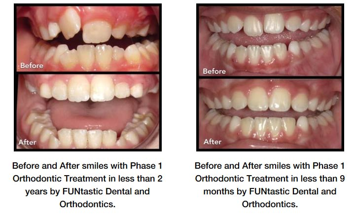 Long Beach Family Orthodontics - Before & After