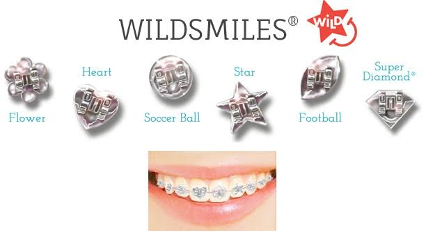 FUNtastic Braces WildSmiles