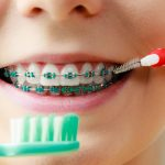 Advice from a Braces Dentist: How to Take Care of Braces