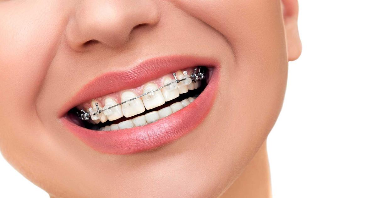 Braces for Straighter Teeth | Cheap braces in long beach ca