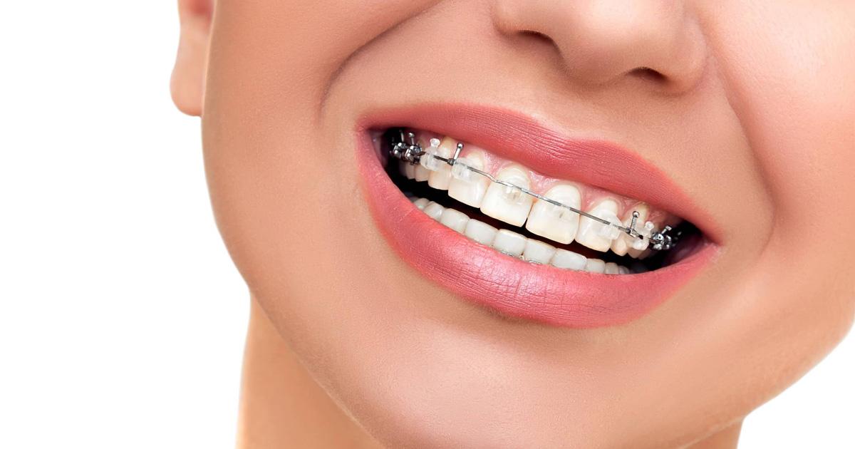 Ceramic Clear Braces | FUNtastic Dental & Orthodontics in ...