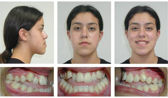 Dental Patient Before