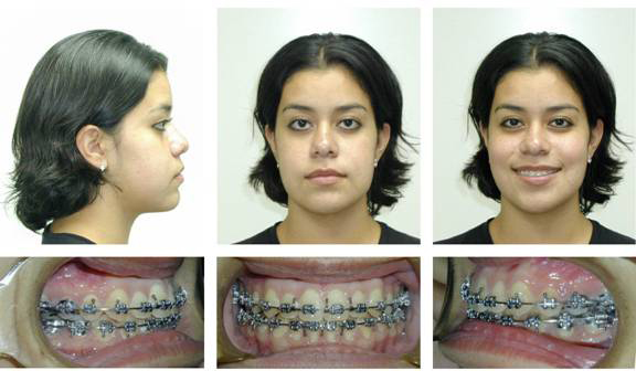 Patient After Orthognathic Surgery