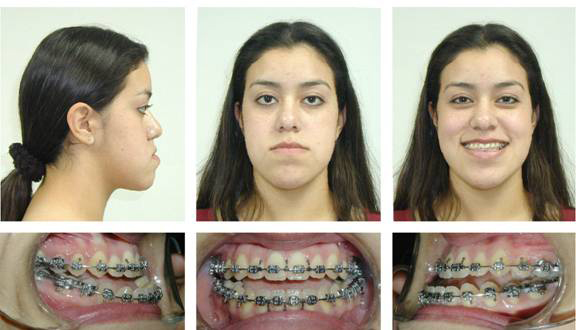Patient Prior to Orthognathic Surgery